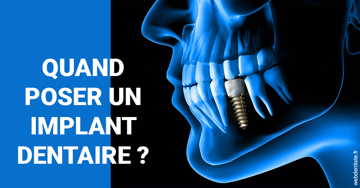 https://dr-ahr-catherine.chirurgiens-dentistes.fr/Les implants 1