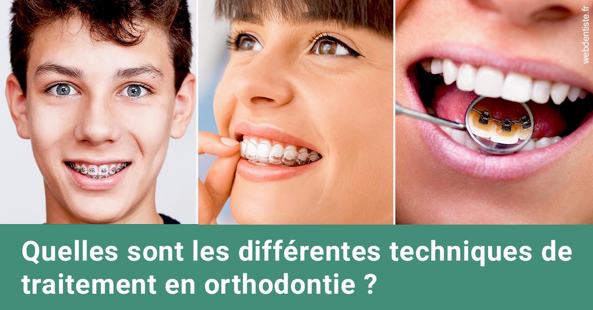 https://dr-ahr-catherine.chirurgiens-dentistes.fr/Les différentes techniques de traitement 2